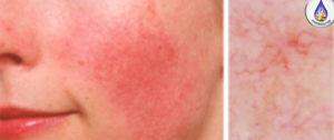 Tratar la Cuperosis y Rosáceas en la piel. aydoagua.com