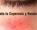 B-Tratar-Cuperosis-Rosaceas-cosmetica-natural-vegana-aydoagua